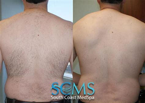 back hair removal picture 5