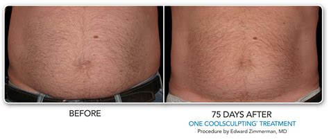 prices on cool beam therapy for stretch marks picture 10