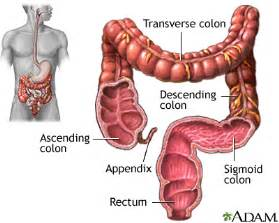 colon cancer and upper stomach pain picture 2