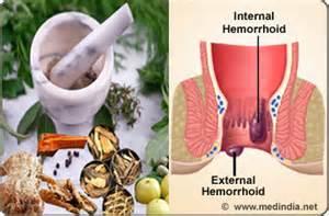 alternative treatment for hemorrhoids picture 1