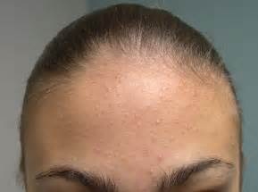 acne in hair picture 1