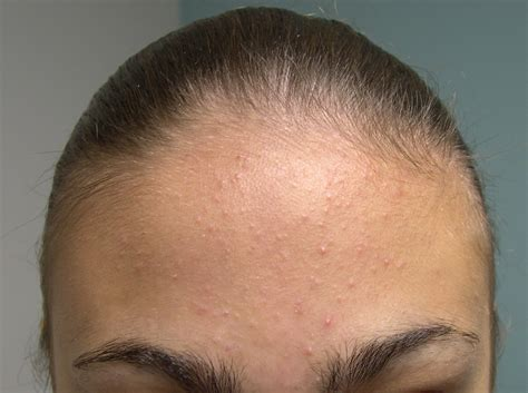 acne on te head picture 1
