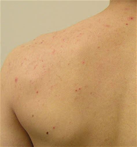 back acne picture picture 5