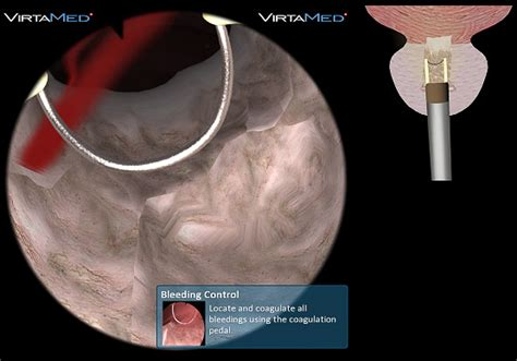 bladder and prostate picture 7