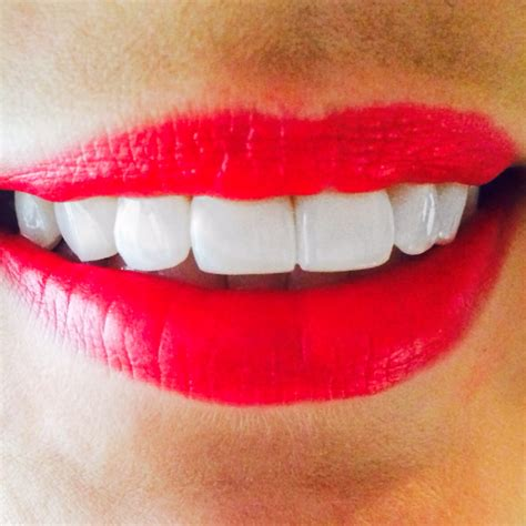 anyone tried perfectly white teeth whitening picture 4