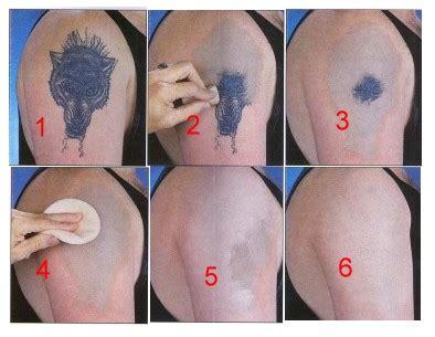 tattoo removal cream picture 6