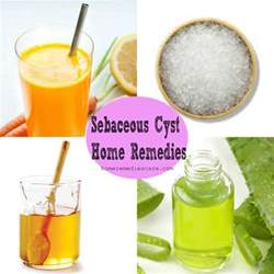 natural remedy to dissolve skin cysts picture 5