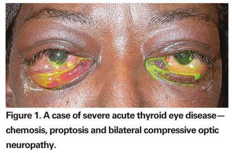 eye disease thyroid picture 2