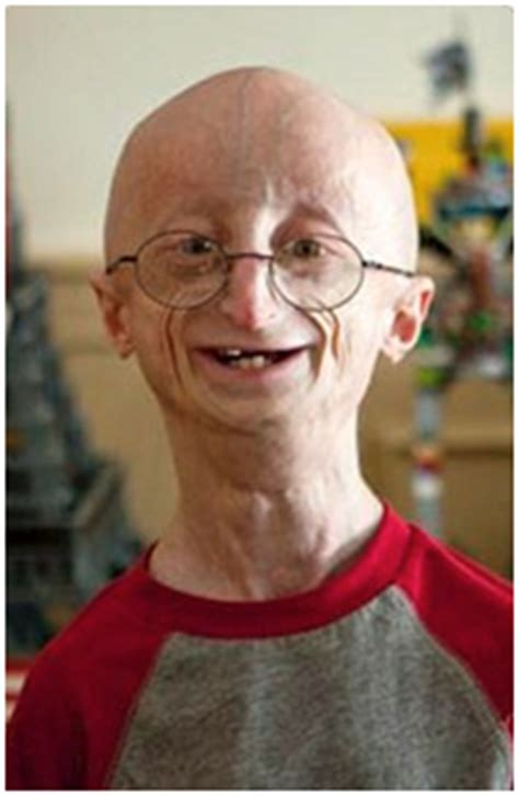 accelerated aging progeria syndrome picture 11