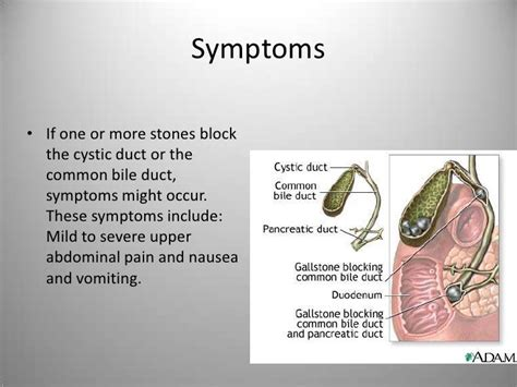 symptoms of gall bladder with gangrene infection picture 6