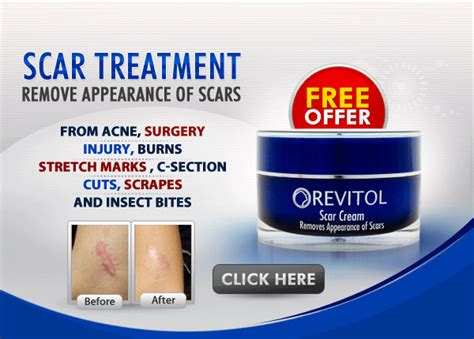 where to buy revitol scar removal cream in dublin picture 4
