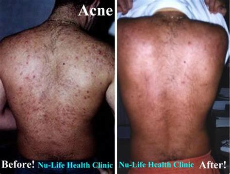 Back and shoulder acne picture 7
