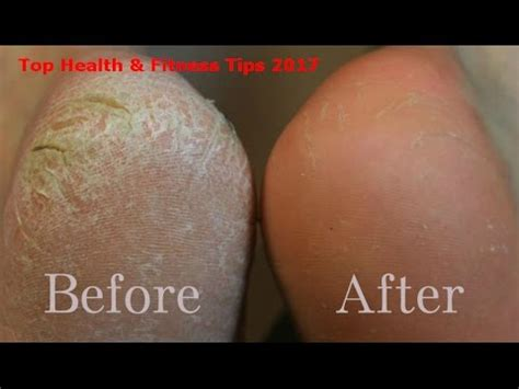 natural removing dead skin from feet picture 9