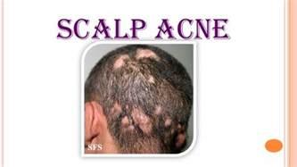 acne scalp picture 17