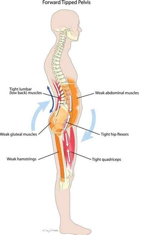 driver muscle pain picture 6