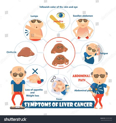 all symptoms of liver cancer picture 15
