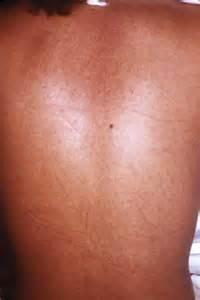 maculopapular skin rash picture 7