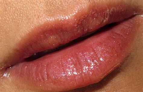 alleegic reaction on lips pictured picture 13