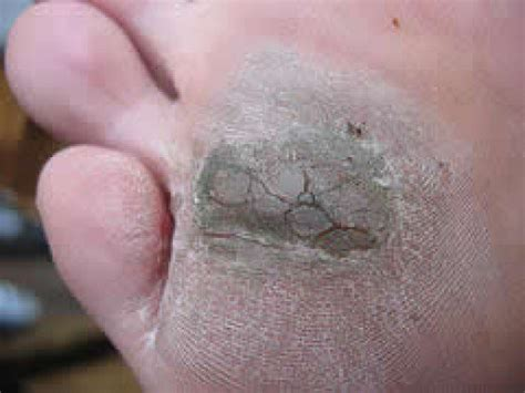 cure for planters warts picture 6