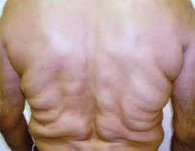 asitis illness picture 1
