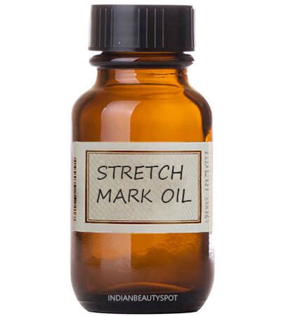 natural health stretch mark help picture 1