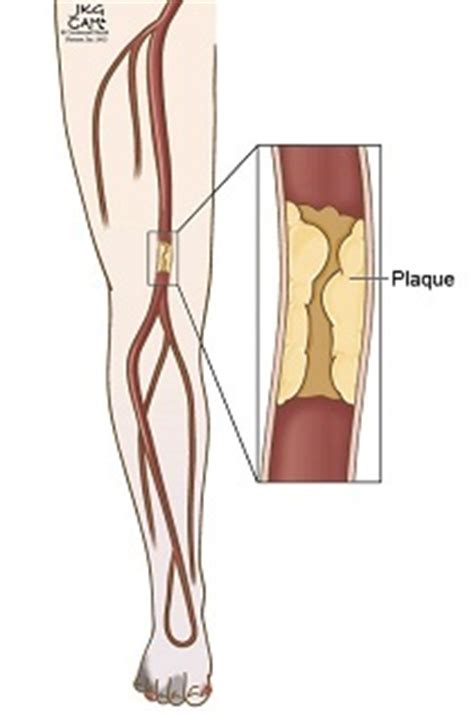 hardening of thigh muscle picture 2