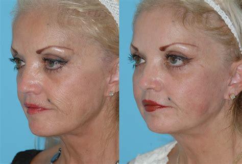 skin resurfacing picture 11