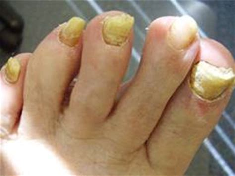 toe nails yellow from smoking picture 6
