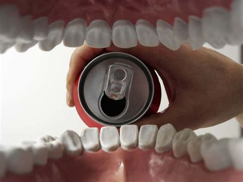 coke teeth picture 3