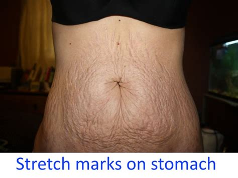belly stretch marks;before and after; profractional picture 3