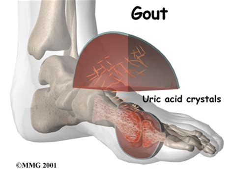 diet coke & joint pain picture 13