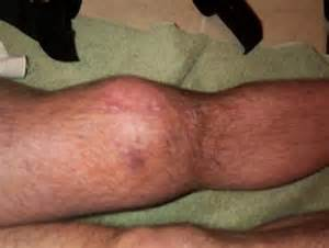 infected joints picture 5