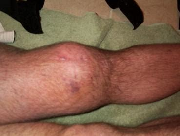 yeast infection in knee joint picture 18
