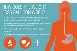 weight loss ballon picture 1