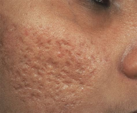 acne health submit url picture 15