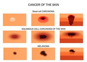 pictures of different types of skin cancers picture 8