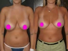 breast reduction after 50 picture 1