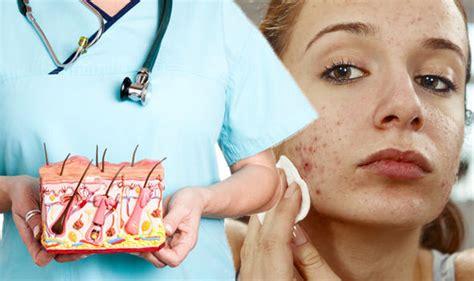 acne statin picture 10