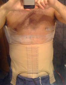 reduce men breast by laser picture 3