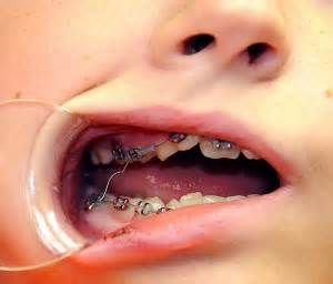 do it yourself home teeth bonding picture 9