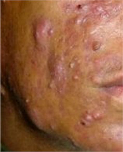 acne nodules and cysts picture 14