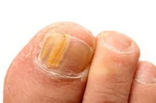 toe nails turning yellow itchy skin picture 4