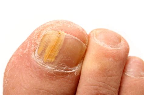 toe nails yellow from smoking picture 5