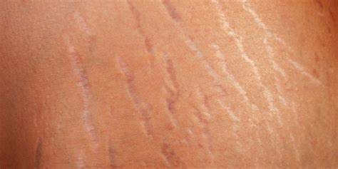does have stretch marks picture 9