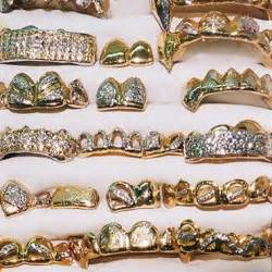 all gold and whitegold teeth picture 14
