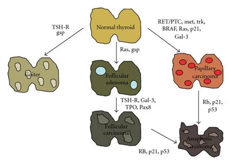 thyroid benign tumors symtoms picture 2