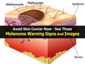 skin cancer warning signs picture 10