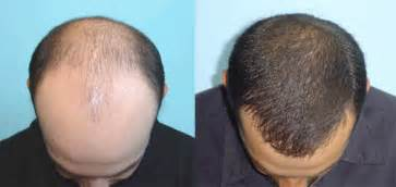 cosmetic surgery hair picture 9