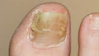 nail fungus infection picture 5