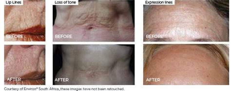 collagen pills for stretch marks picture 7